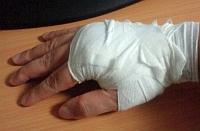 20111121_injury